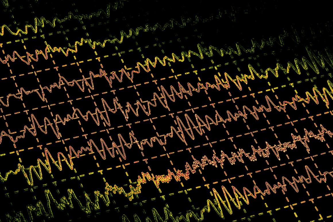 UCSF researchers have been able to cure epilepsy in adult mice by transplanting a specific type of cell into the brain (Photo: Shutterstock)