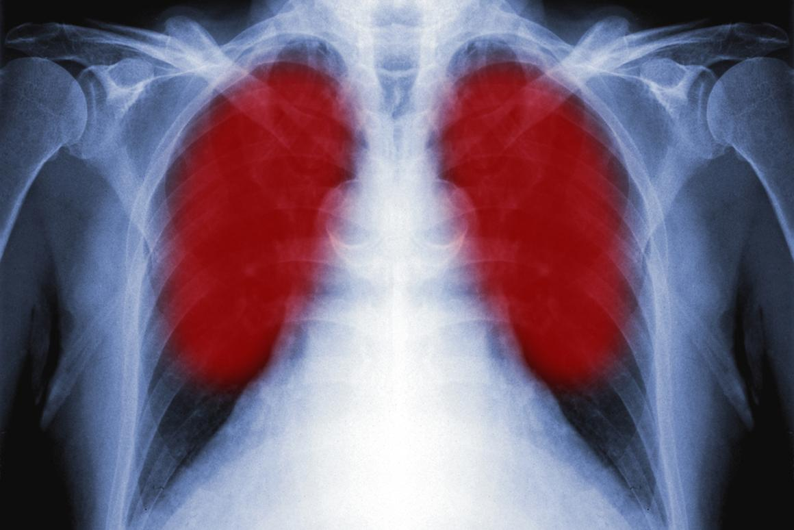 A promising breath-testing tool for detecting lung cancer is set to undergo clinical trials Shutterstock