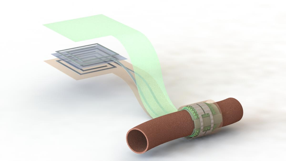 An artist's depiction of the pressure sensor wrapped around a blood vessel, with the antenna off to the side (layers separated to show details of the antenna's structure)