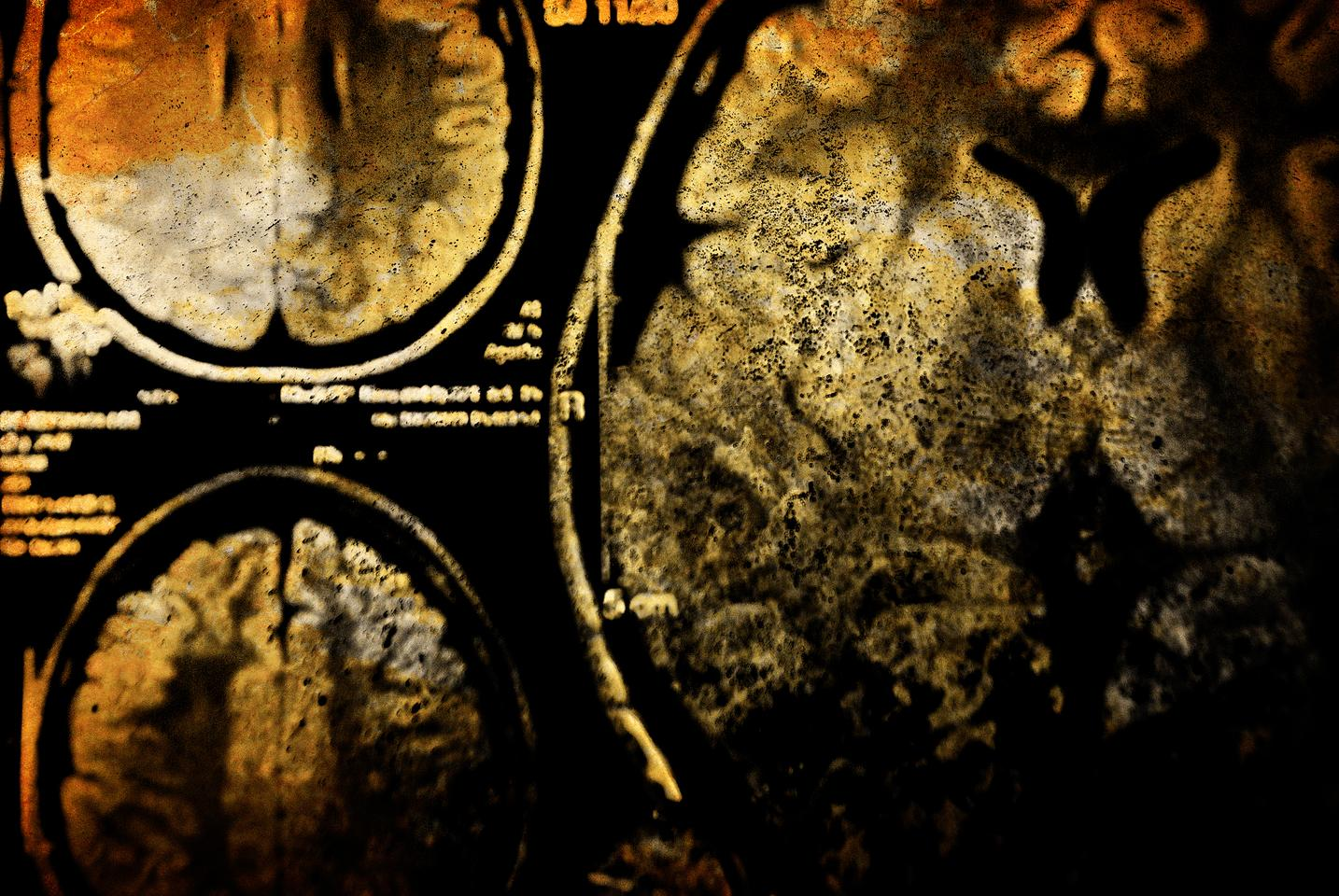 A new study has uncovered how brain injury can be worsened by bacteria in the gut