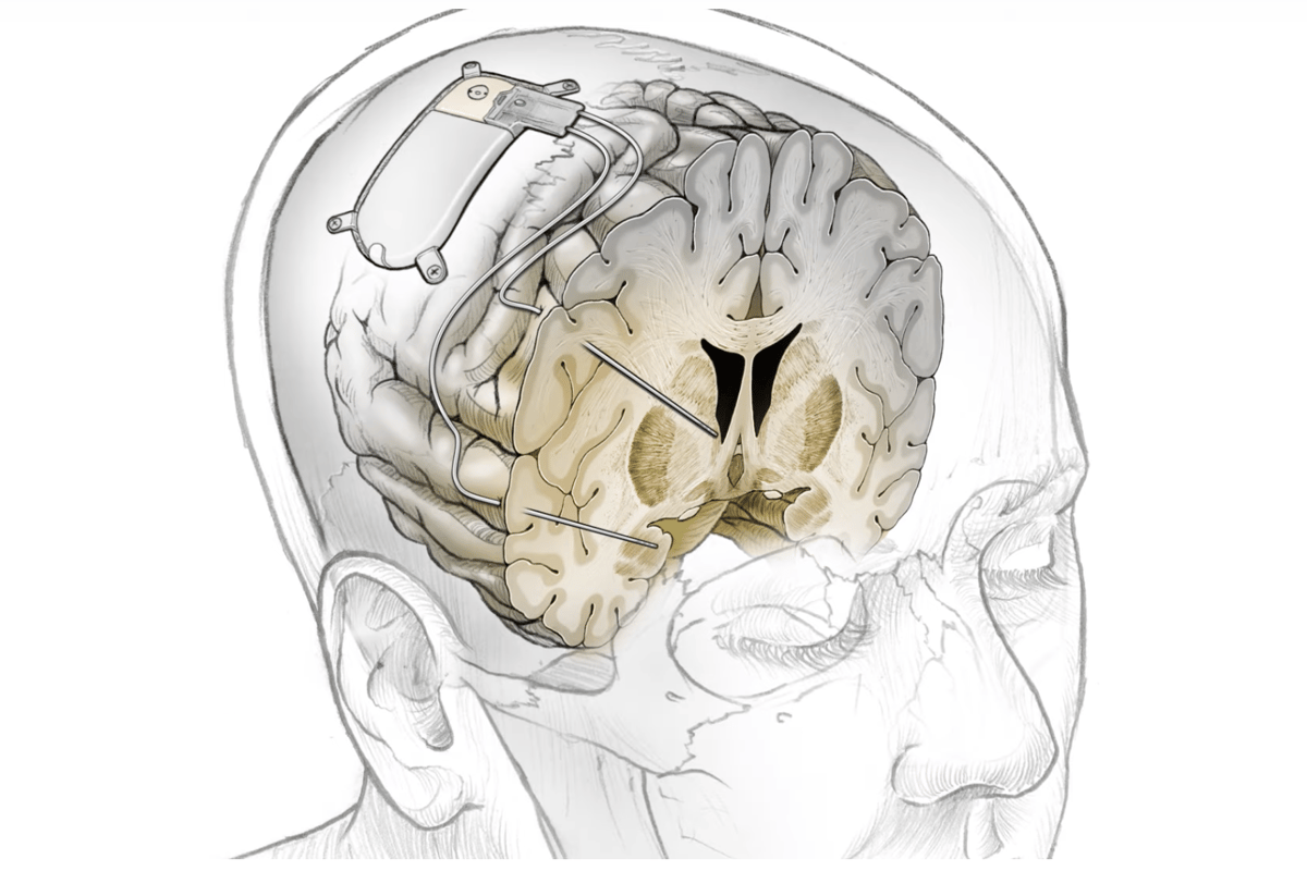The implant monitors brain activity for patterns of depression and responds with short bursts of electrical stimulation designed to disrupt cycles of depressive brain activity