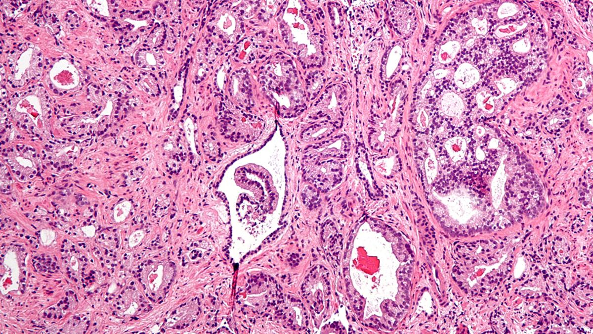 Micrograph showing prostatic acinar adenocarcinoma - the most common form of prostate cancer (Image: Nephron via Wikipedia)