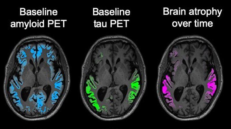 This image clearly shows how effectively the tau PET scans can predict the location of neurodegeneration