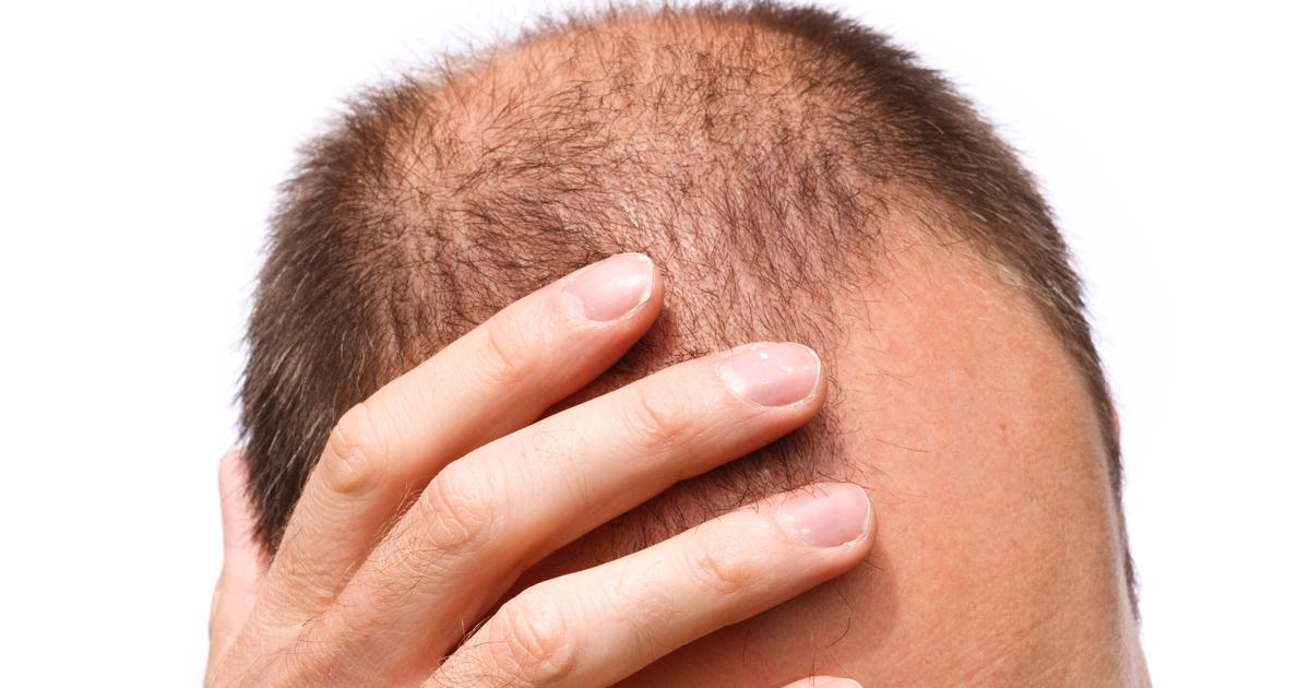 Stem cell topical solution for baldness offers positive trial results