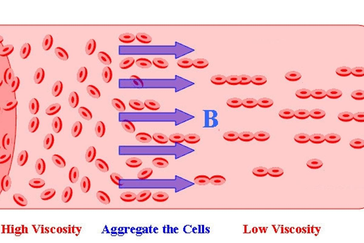 A diagram depicting Tao's system for thinning blood using magnetic fields (Image: Temple University)