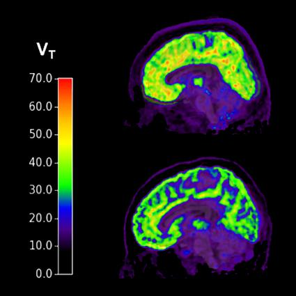 Tracking mGluR5 activity, the scan at the top shows a patient with PTSD and suicidal thoughts, while the bottom scan is a healthy brain with no suicidal thoughts