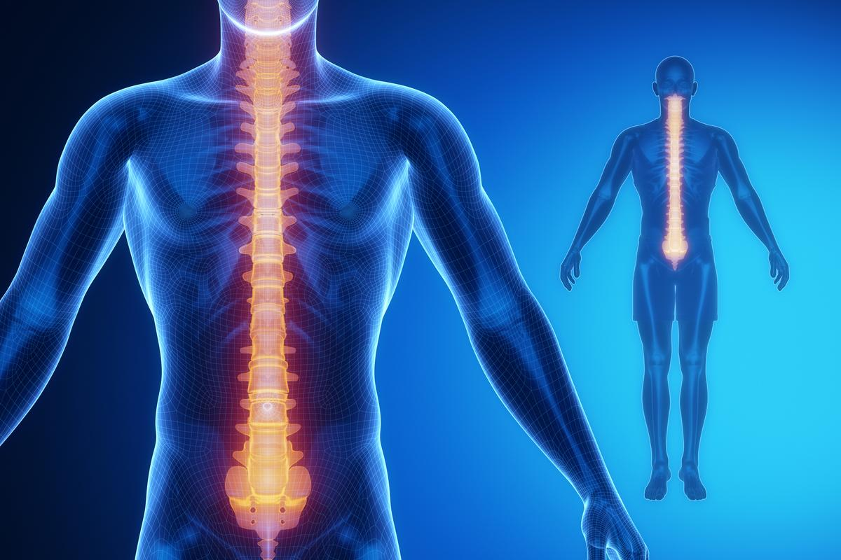 Stimulation of the spinal cord offers a potential new pathway in the treatment of Parkinson's disease