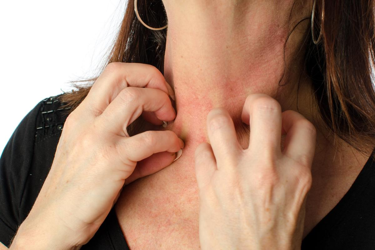 The treatment may stop itching for up to several months