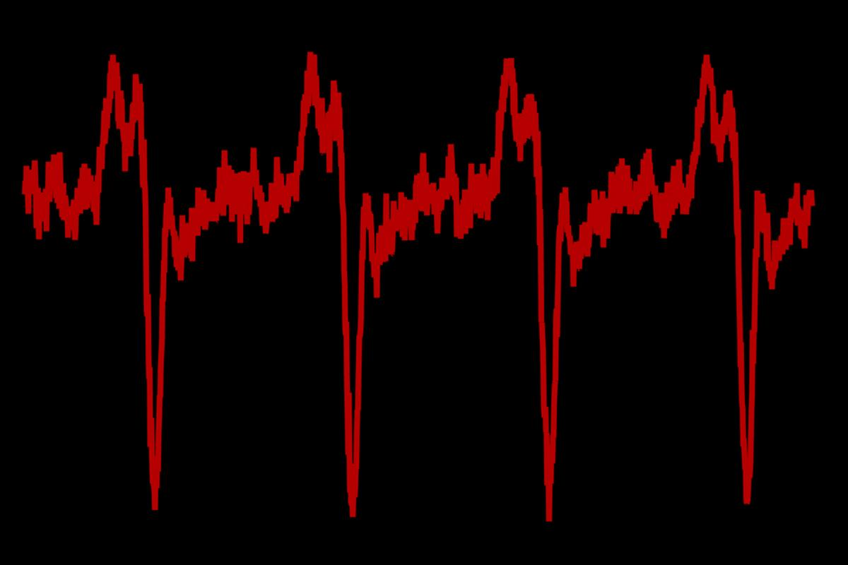 Colorized trace of pulses from the NIST/JILA dark pulse laser, indicating the light output nearly shuts down about every 2.5 nanoseconds (Image: NIST)