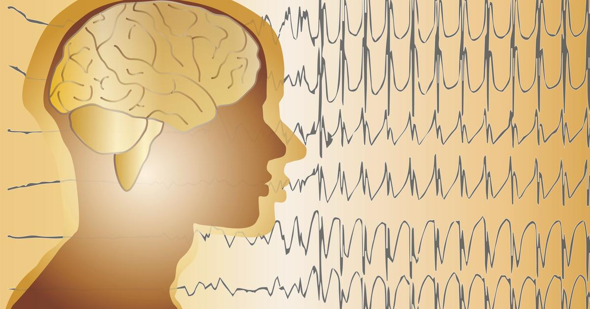 Wearable system designed to predict seizures