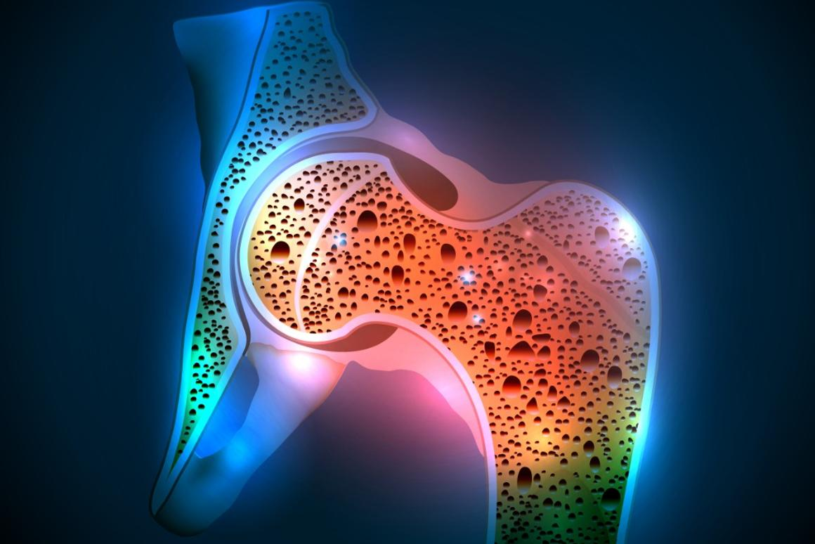 The researchers hope that their work could be used to help combat brittle bone defects in women
