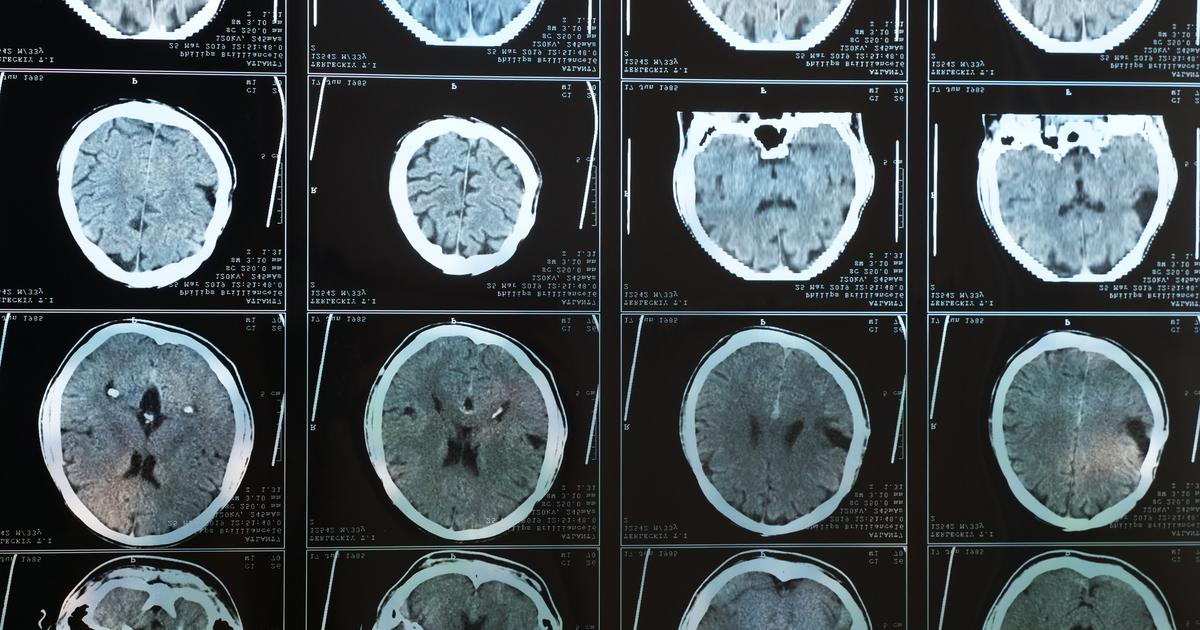 Imaging study offers clue to how obesity can increase Alzheimer's risk