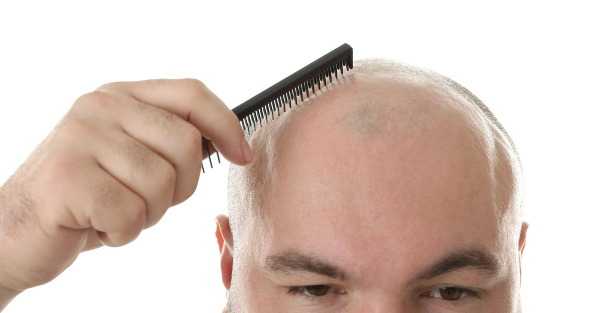 Hair-regrowth molecule could bypass stem cell treatments for baldness