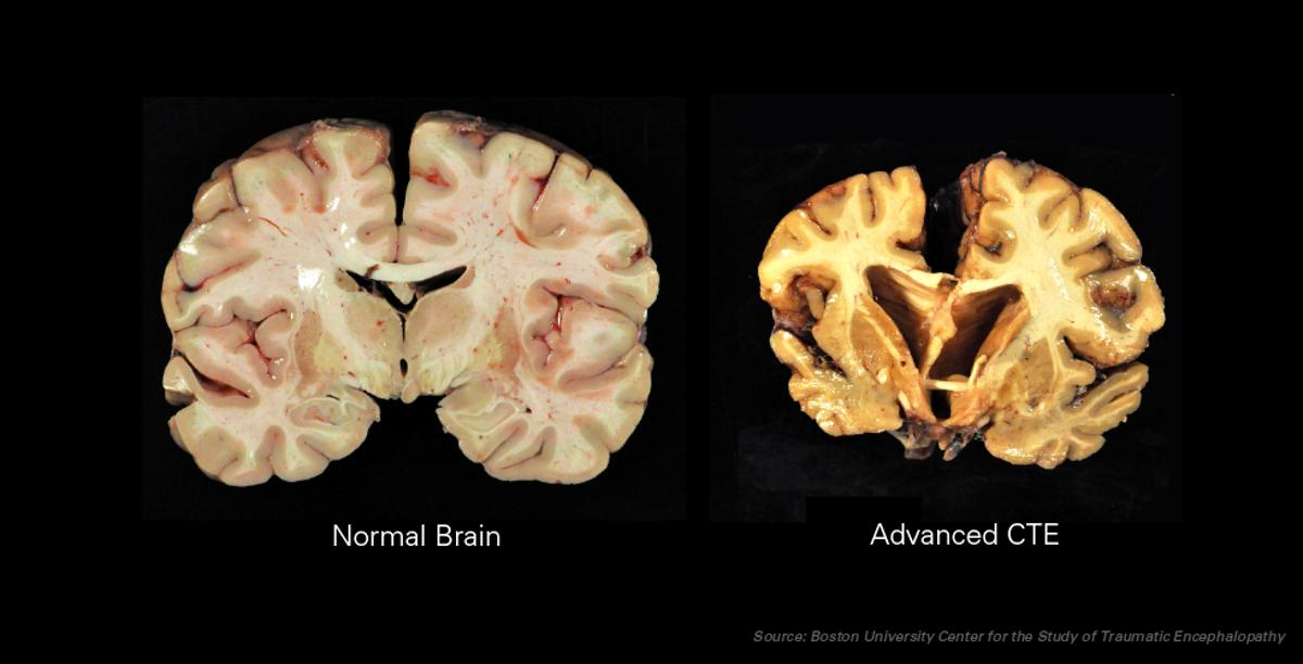 A normal brain, as compared to one with advancedchronic traumatic encephalopathy