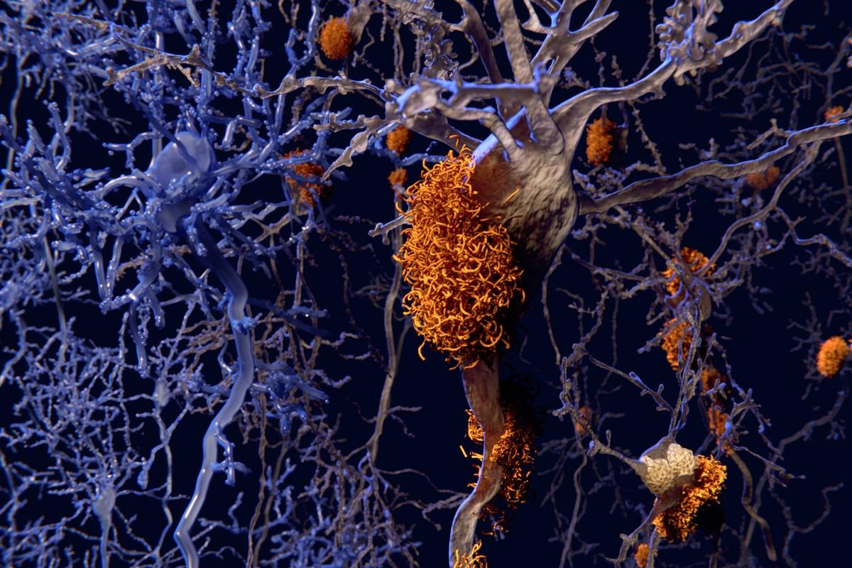 Research suggests toxic amyloid and tau proteins can change their molecular shape to avoid detection and removal by the body's cellular garbage disposal system