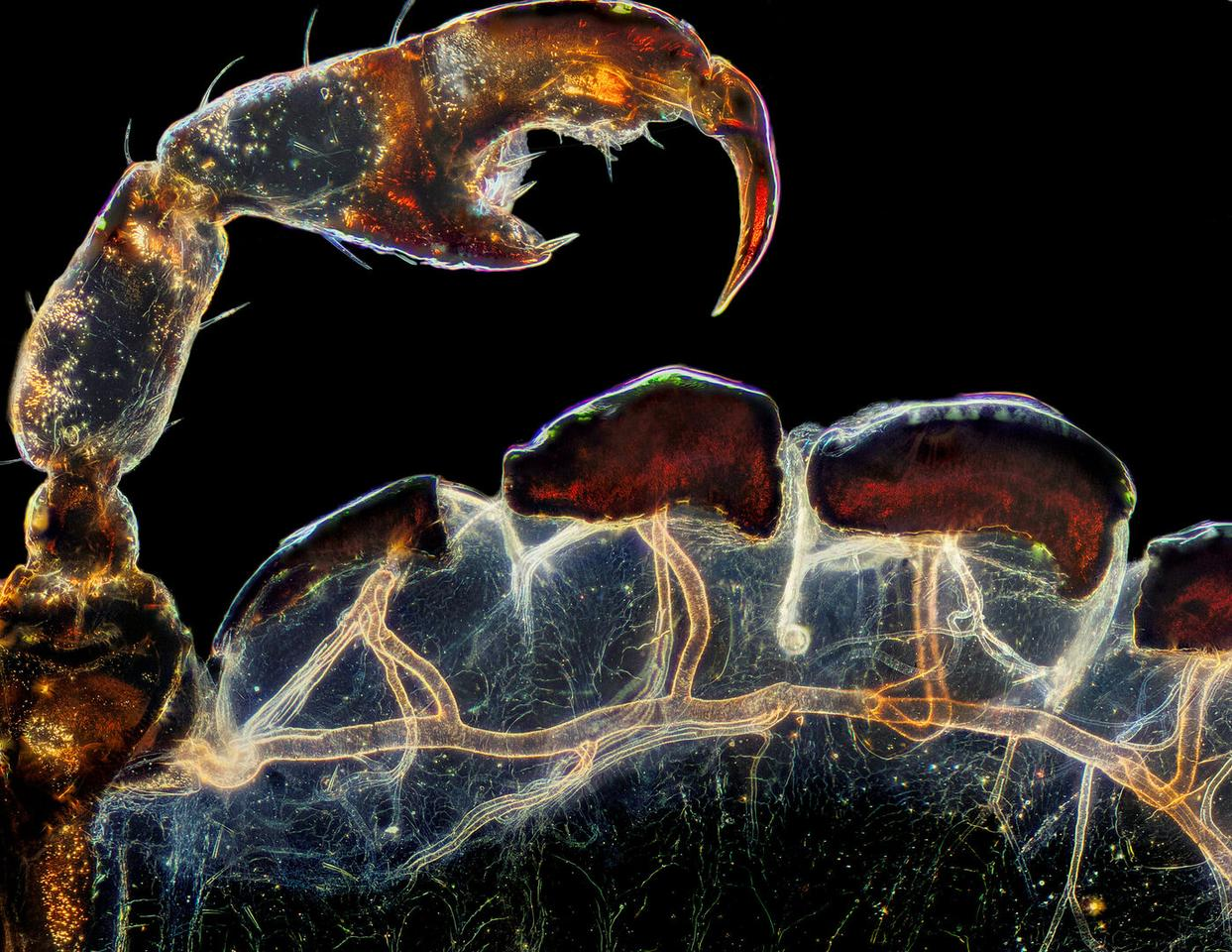 3rd Place. Rear leg, claw, and respiratory trachea of a louse (Haematopinus suis). Darkfield. Image Stacking. 5X (Objective Lens Magnification)