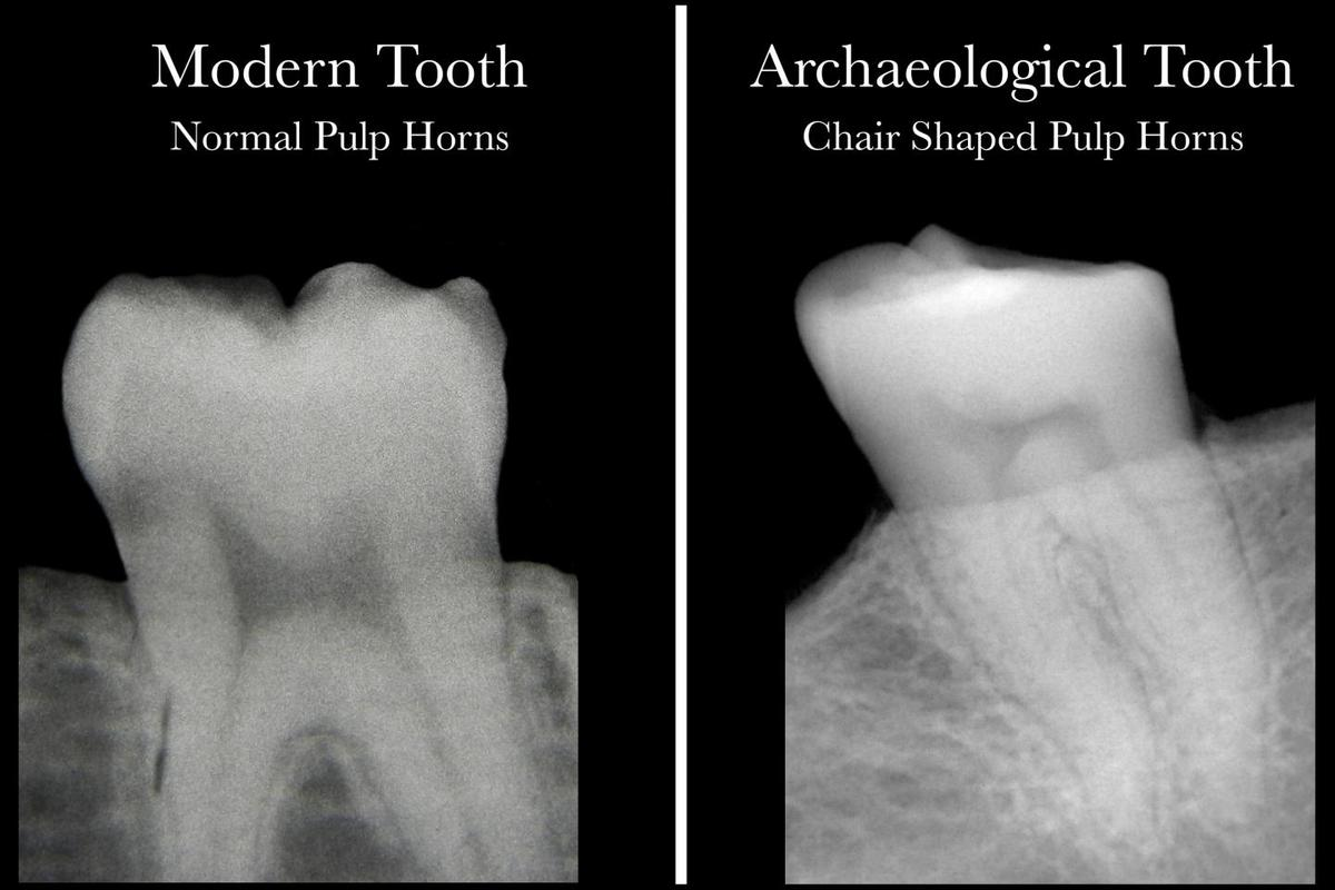 """A modern healthy tooth with pulp """"horns"""" (left), and an archeological tooth indicating a lack of vitamin D"""