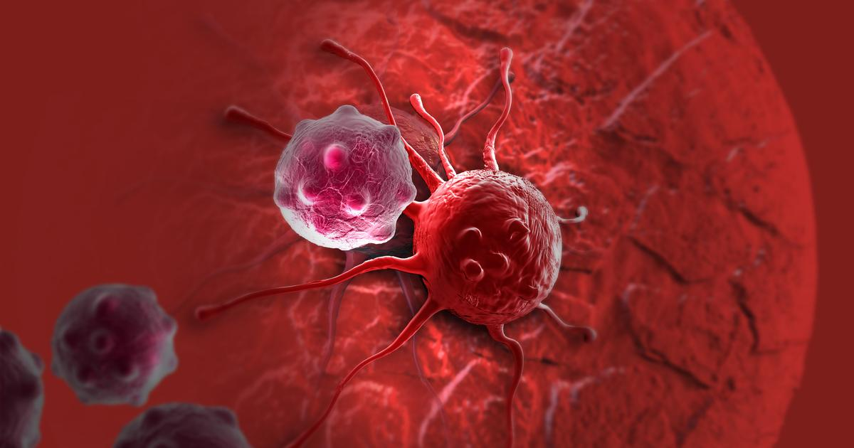 Calcium nanoparticles could help knock out cancer's drug resistance