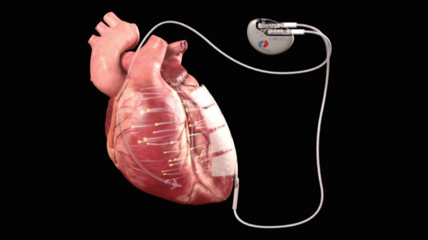 The device incorporates two electrodes, which are attached to the heart