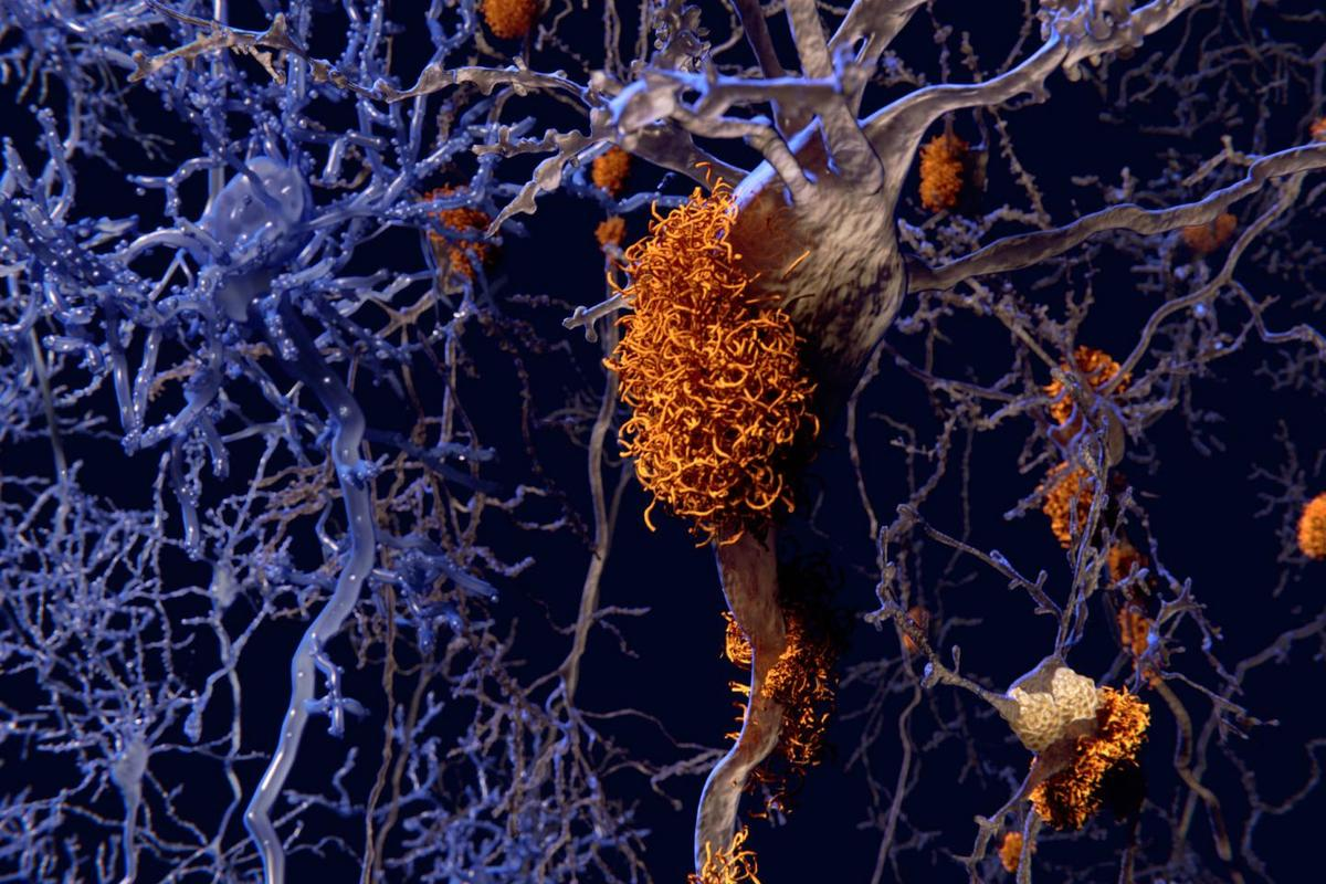 An illustration showing how abnormal tau protein tangles (in orange) can accumulate and destroy neurons, resulting in cognitive degeneration associated with diseases such as Alzheimer's