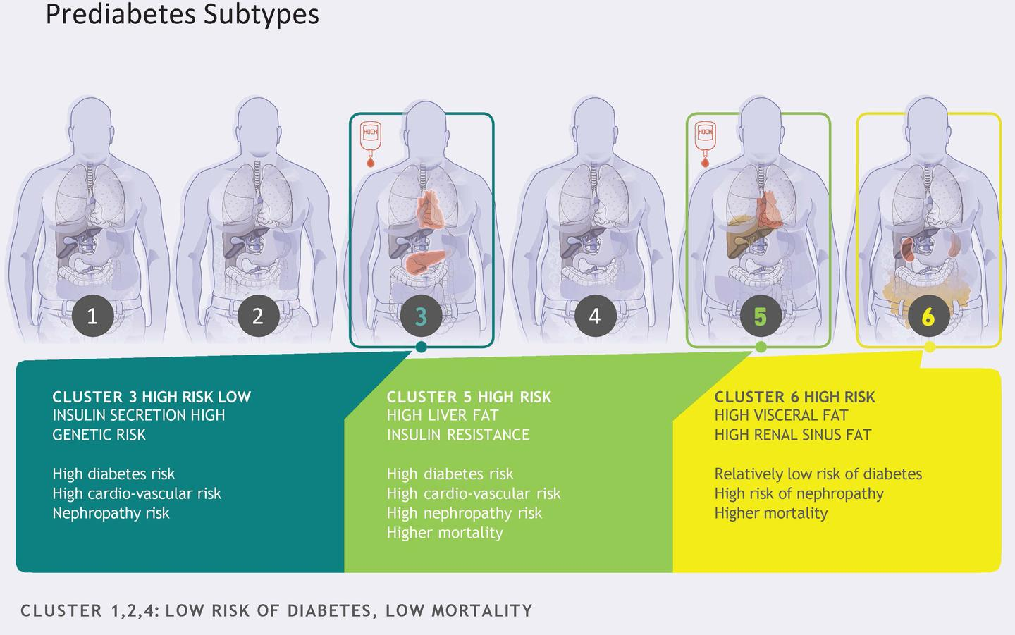 The research identified six distinguishable prediabetes subtypes, or clusters