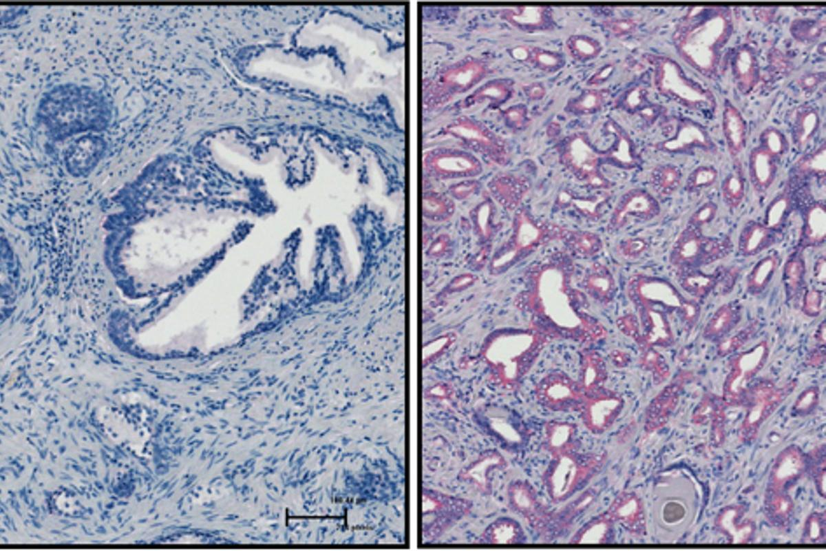 The activity of the SRPK1 molecule was found to be higher in cancerous (right) than benign tissue (left)