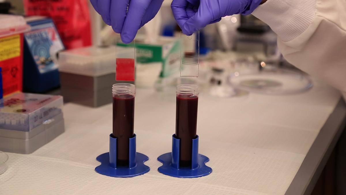 Glass slides dipped in blood to demonstrate the effectiveness of the TLP coating. with blood sticking to the untreated slide on the left while the TLP-treated slide on the right emerges entirely clear (Photo: Harvard's Wyss Institute)