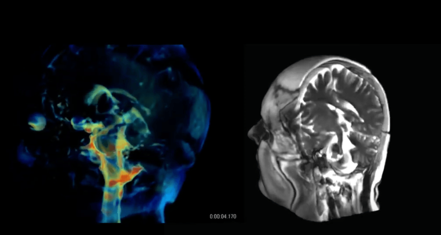 The detail in these new 3D aMRI visualizations may be able to help identify abnormalities, such as those caused by blockages of spinal fluids, which include blood and spinal fluid in the brain