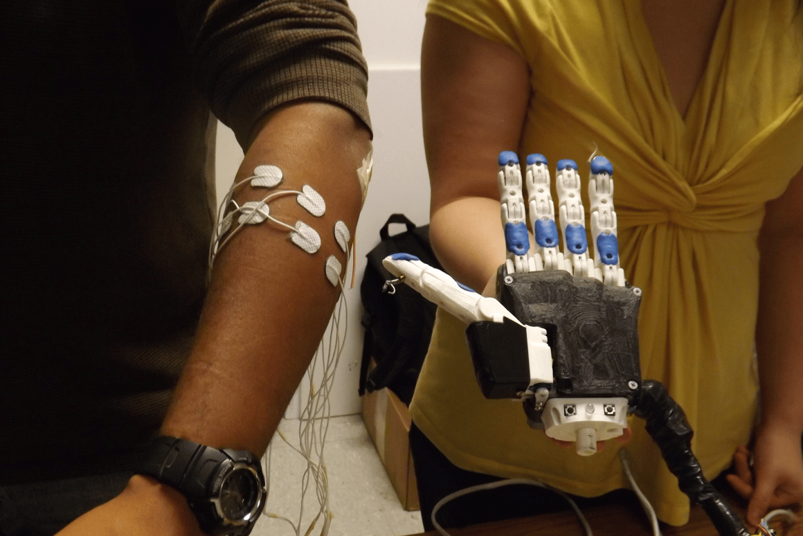 A US$270 programmable, 3D-printed electromyographic prosthetic hand may soon change the lives of amputees in Ecuador and elsewhere around the world (Photo: University of Illinois at Urbana-Champaign)