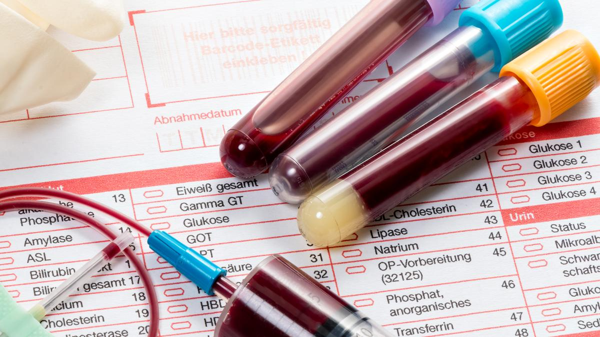 Blood test reveals more than 20 types of cancer