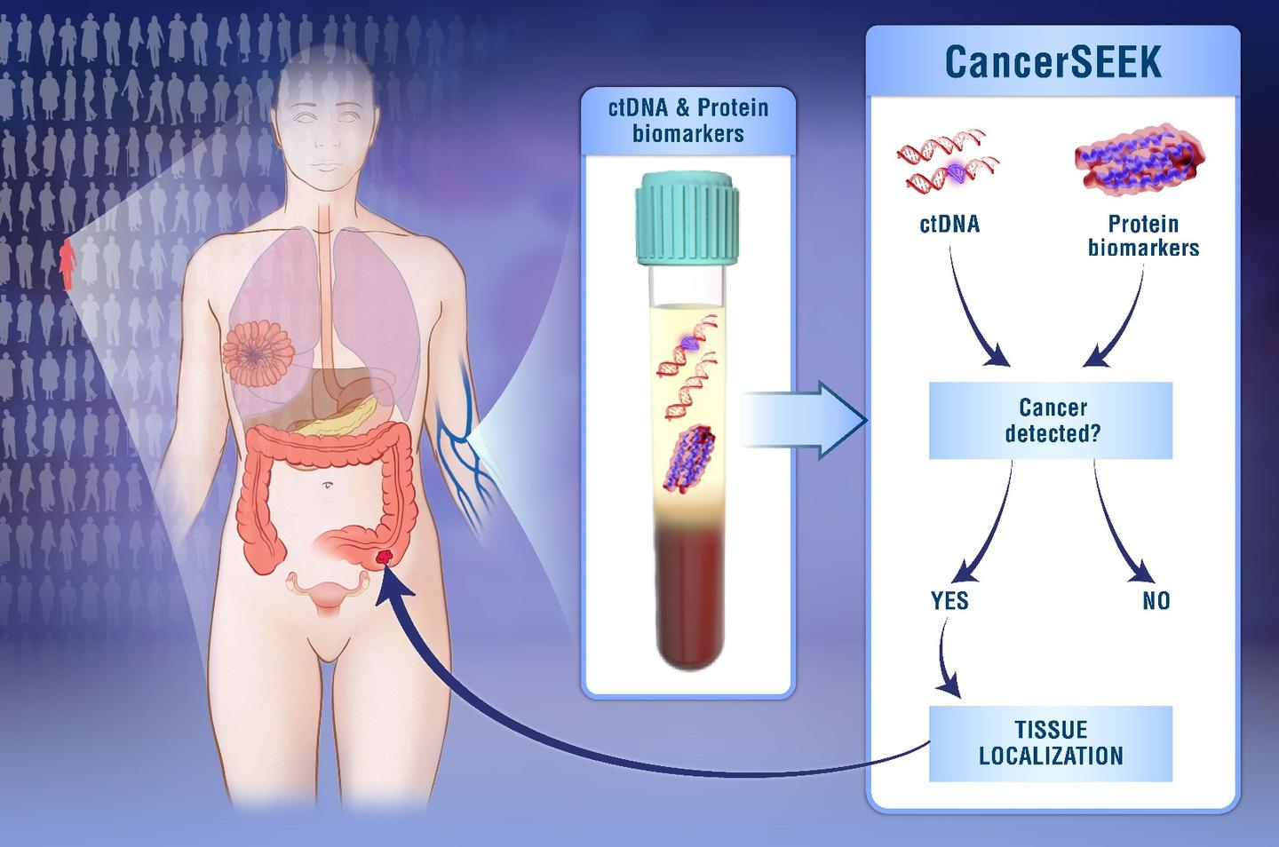 The blood test tracks two different kinds of biomarkers to detect eight types of cancer
