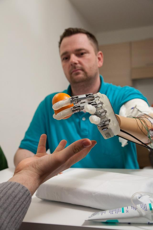 Four electrodes were implanted into the ulnar and median nerves of the arm