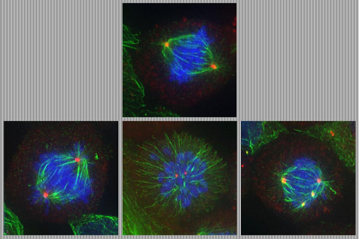 The top image shows a cell undergoing normal cell division, while the bottom three images show defects introduced into the process by the new drug duo