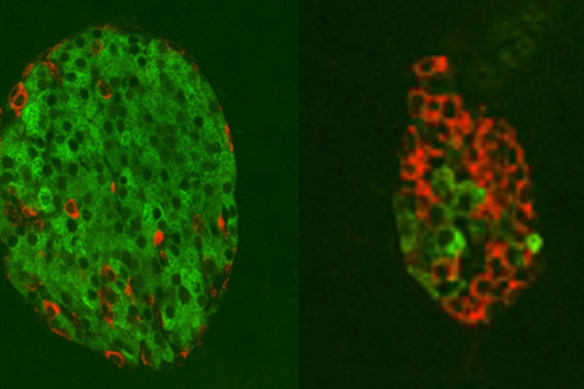 A healthy pancreatic islet with plenty of insulin-producing cells (seen in green) and glucagon-producing cells (seen in red) on the left, compared to a diabetic pancreatic islet on the right