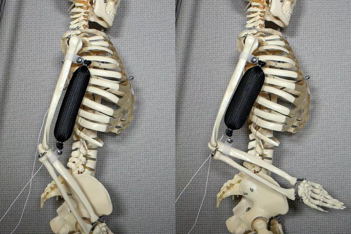 Columbia University engineers have developed a soft actuator that mimics natural muscle, but is three times stronger