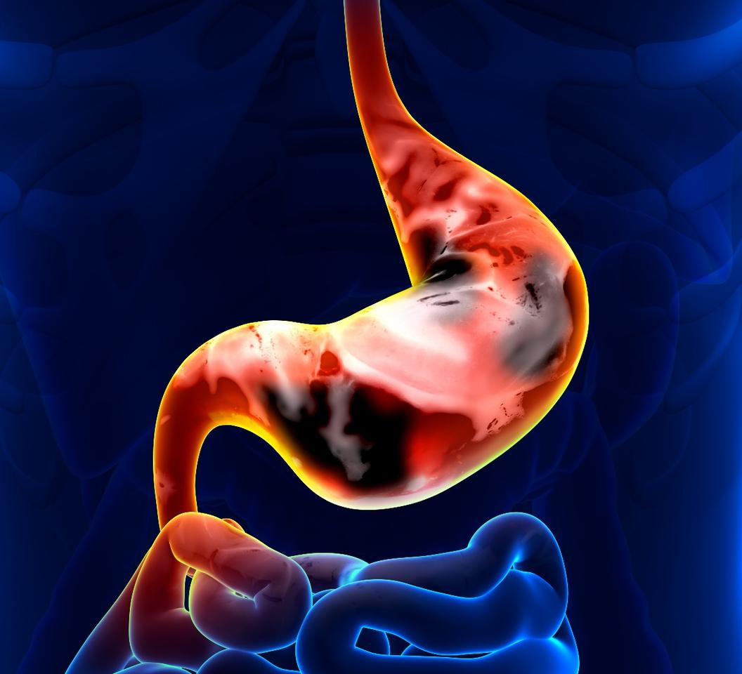 A breath test has shown promise for detecting stomach and esophageal cancers