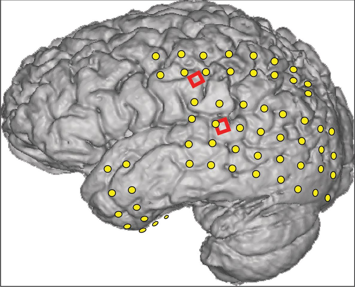 An epileptic patient's brain is superimposed with the locations of two kinds of electrodes: conventional ECoG electrodes (yellow), and two grids (red) of 16 experimental microECoG electrodes used to read speech signals from the brain (Image: Kai Miller, University of Washington)