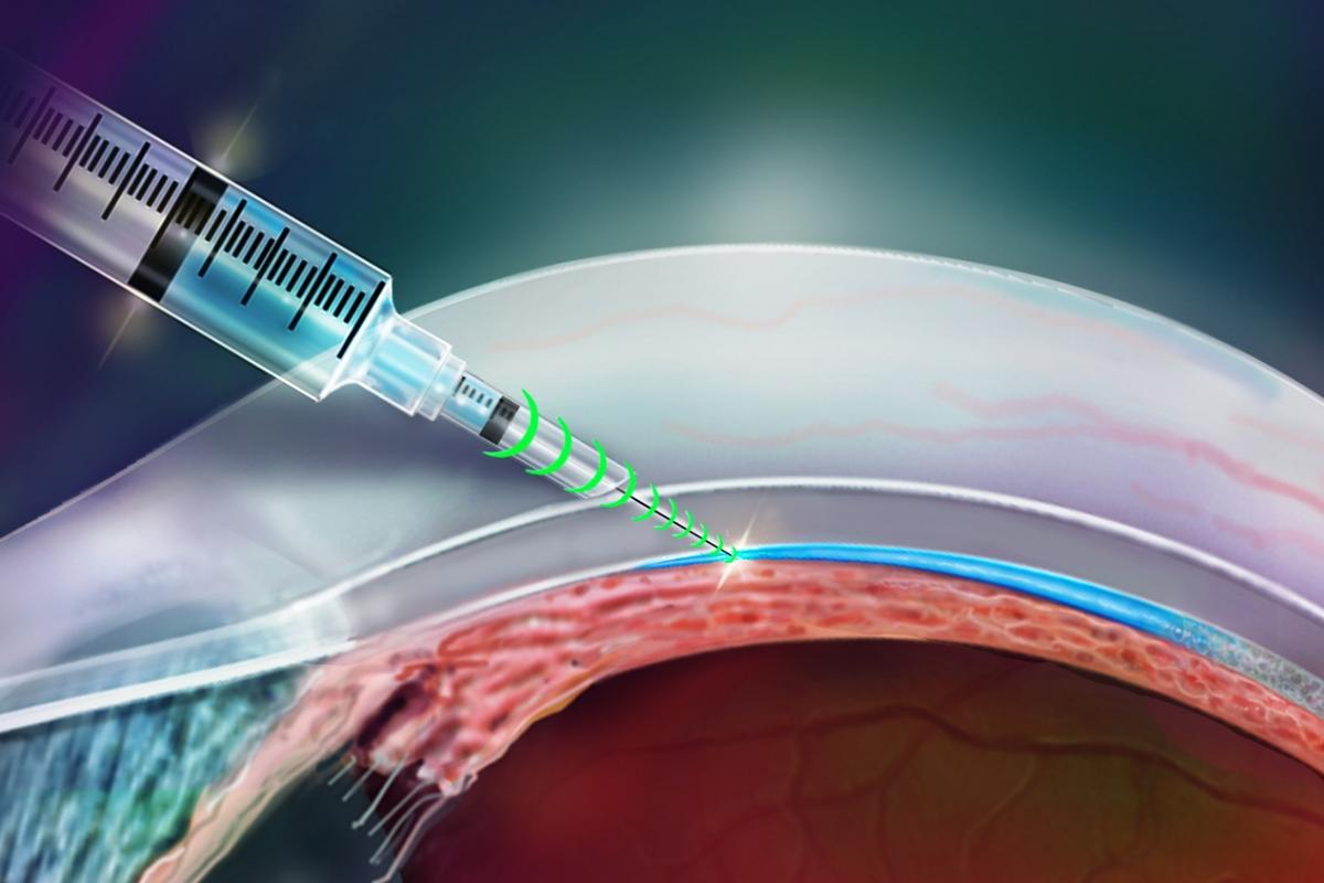 An illustration of the i2T2 needle being used to deliver medication to the eye's suprachoroidal space