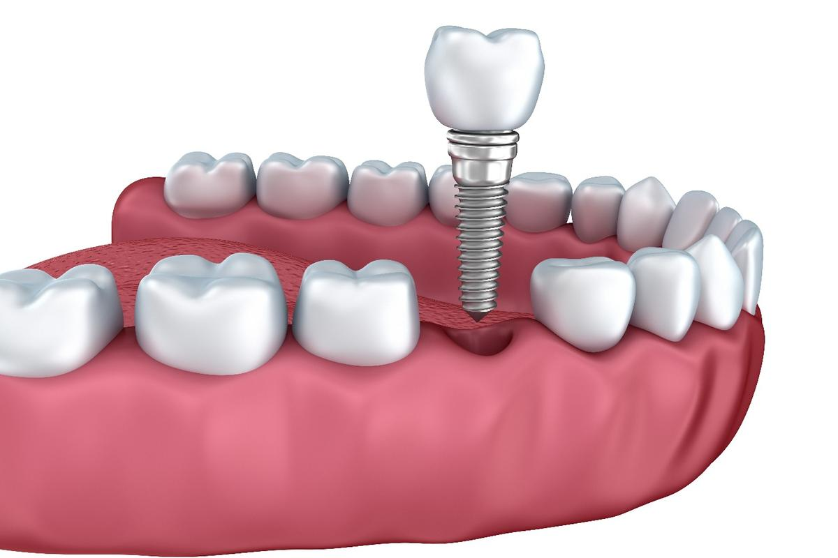 Researchers have developed coatings for dental implants that aid the healing process and fight infection