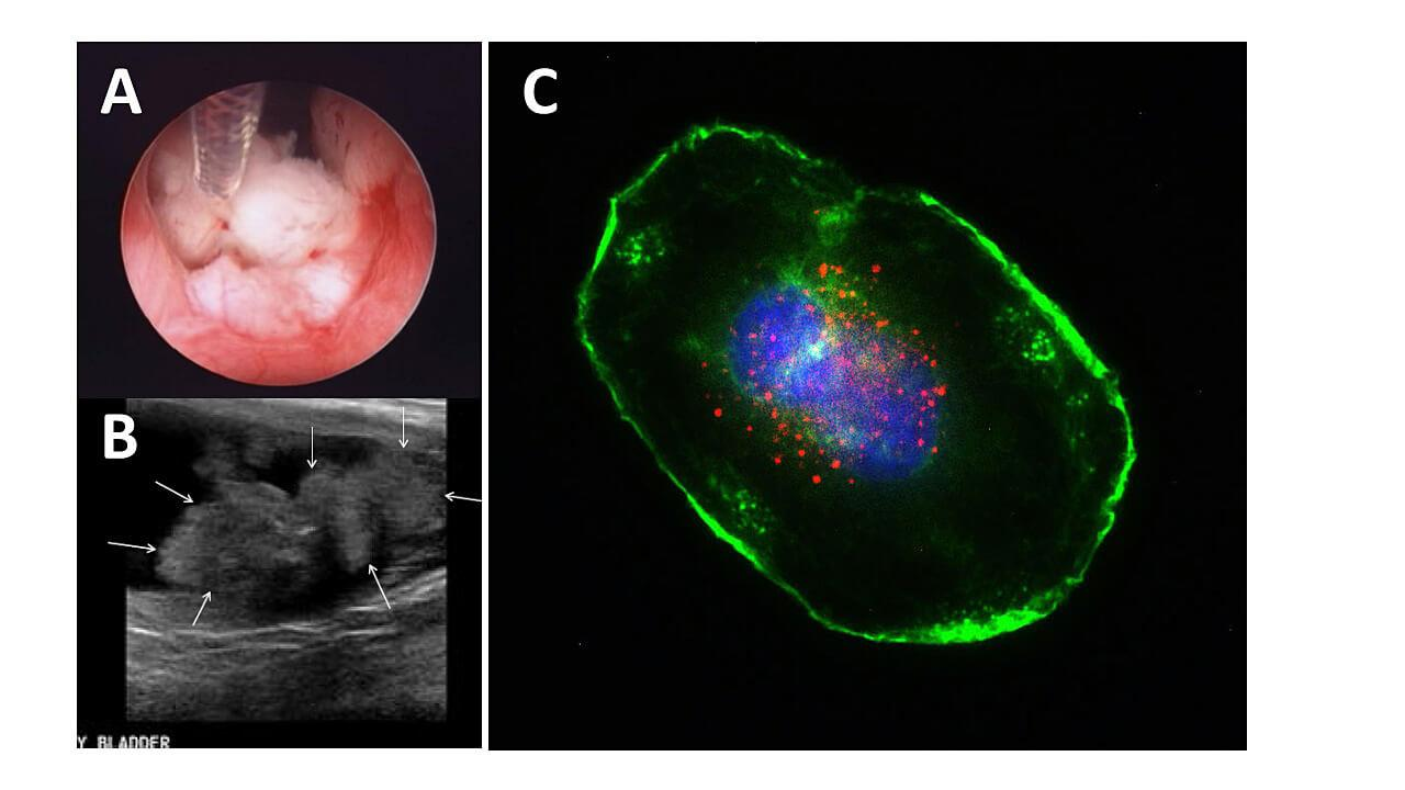 A) A biopsy taking place in a dog bladder. B) Ultrasound image of bladder cancer. C) Fluorescent labelling of bladder cancer