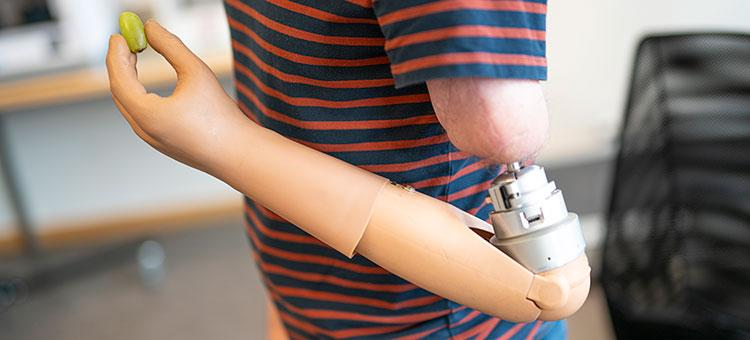 The new prosthetic arm has built-in sensors in the thumb that allows the user to feel how much pressure they