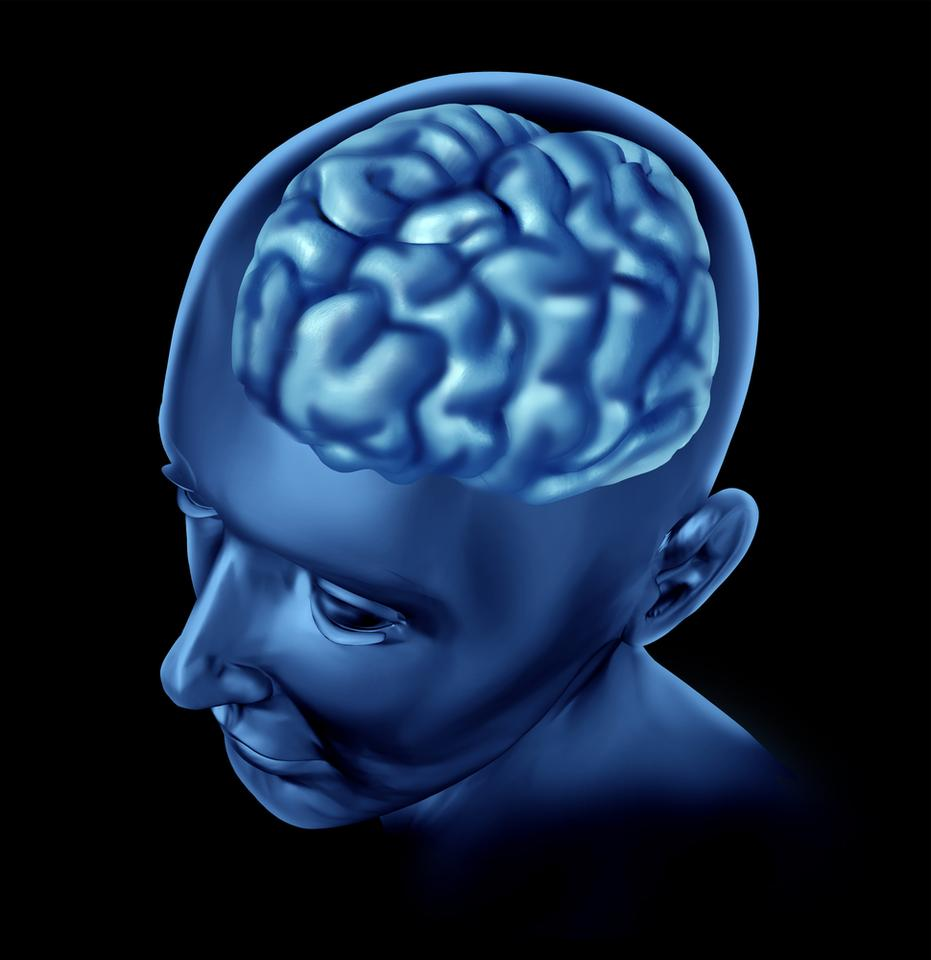 Scientists are looking into treating Alzheimer's disease by applying tiny shocks to the brain, via an implantable device (Image: Shutterstock)