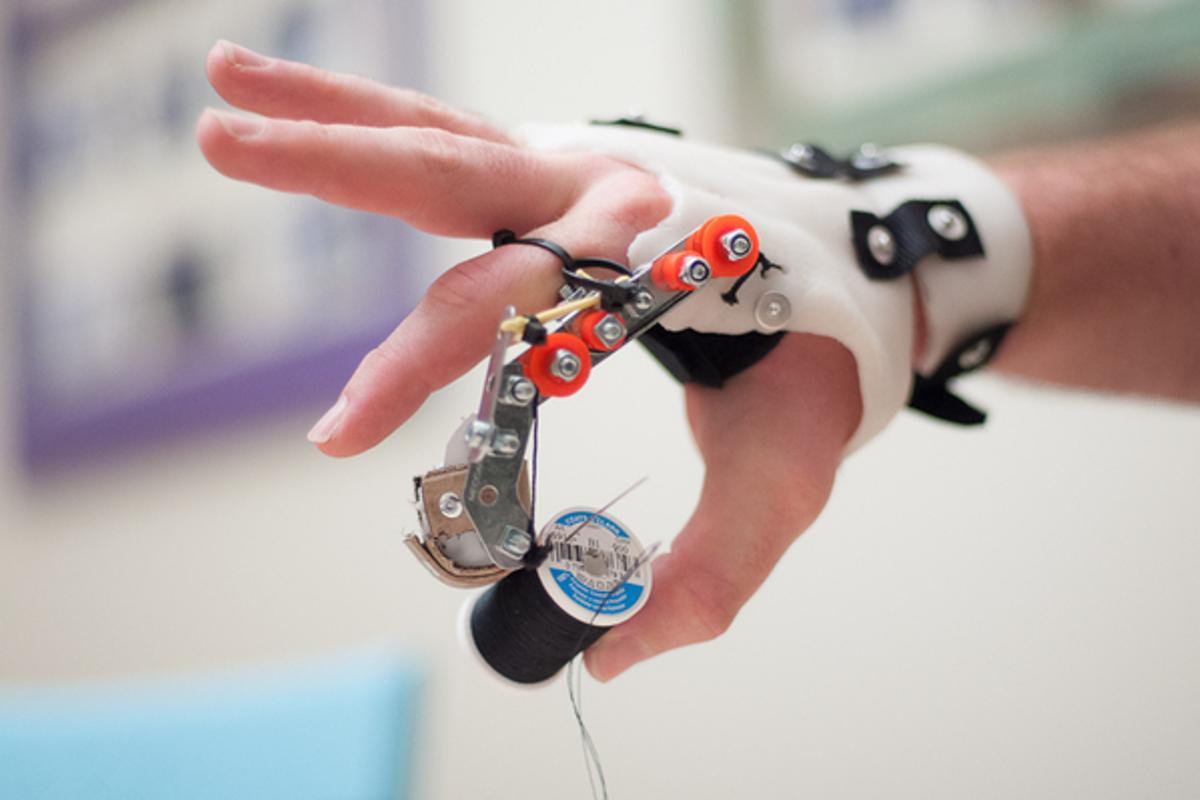 The prototype prosthetic finger