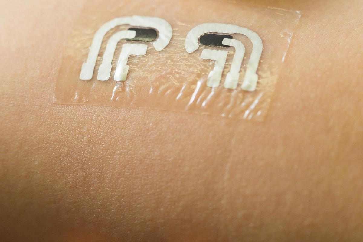 Temporary tattoo could let diabetics monitor glucose levels