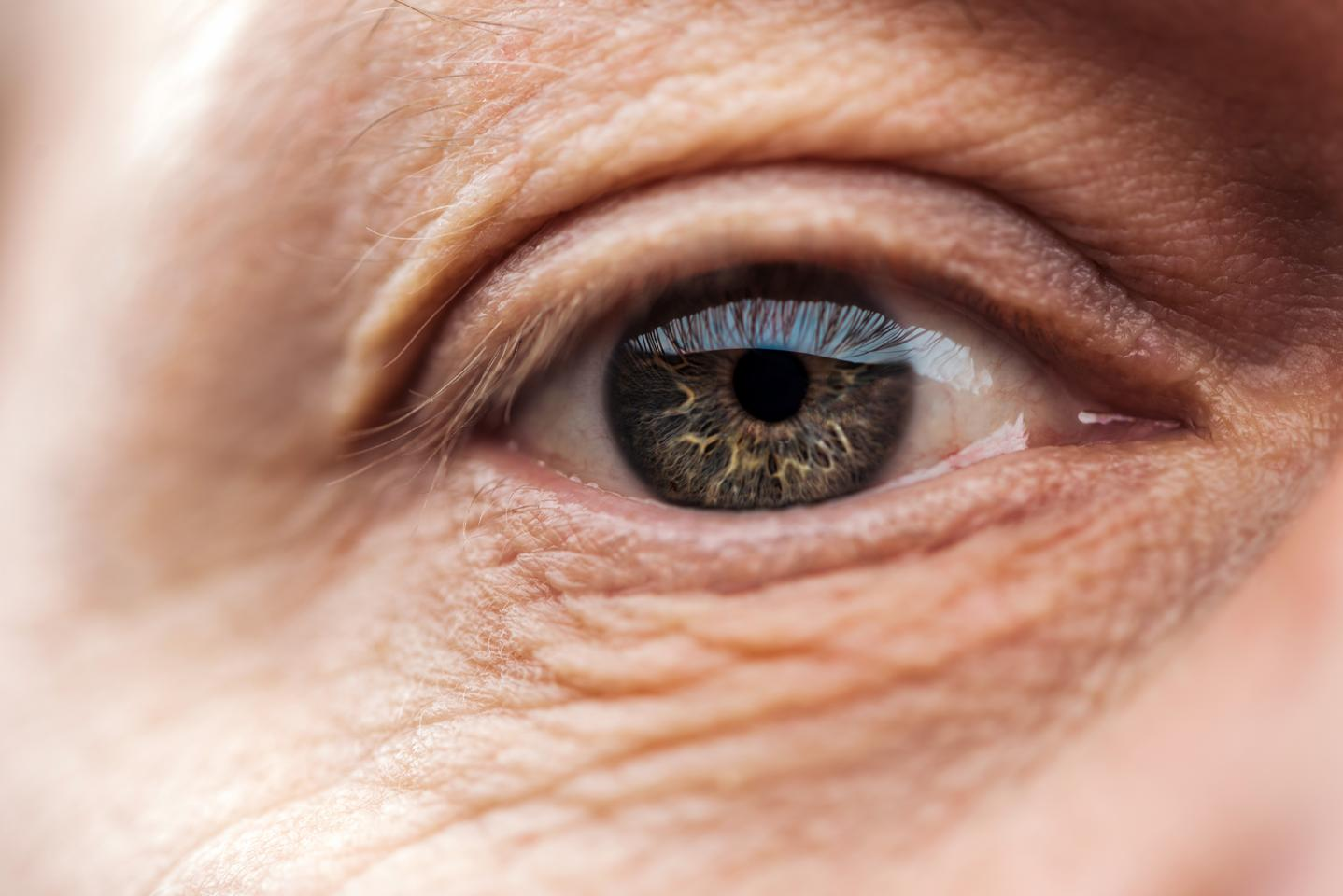 People with age-related macular degeneration have higher bloodstream levels of a protein known as FHR-4