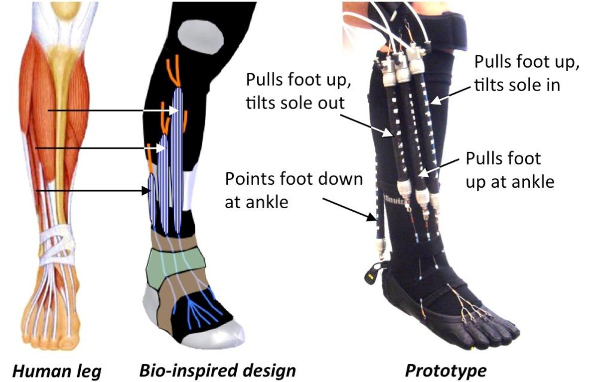 A diagram of the experimental orthotic device