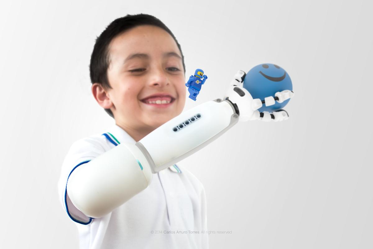 After a fair bit of tinkering, Torres developed a functioning prototype of a prosthetic that lets kid use their imagination to build their own arm