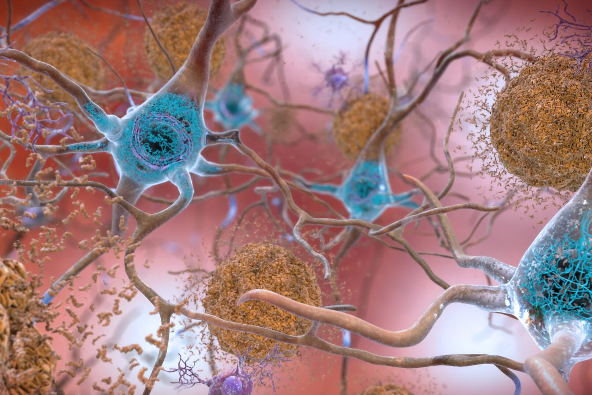 Tau tangles (blue) can build up inside neurons, and are implicated in the formation of Alzheimer's