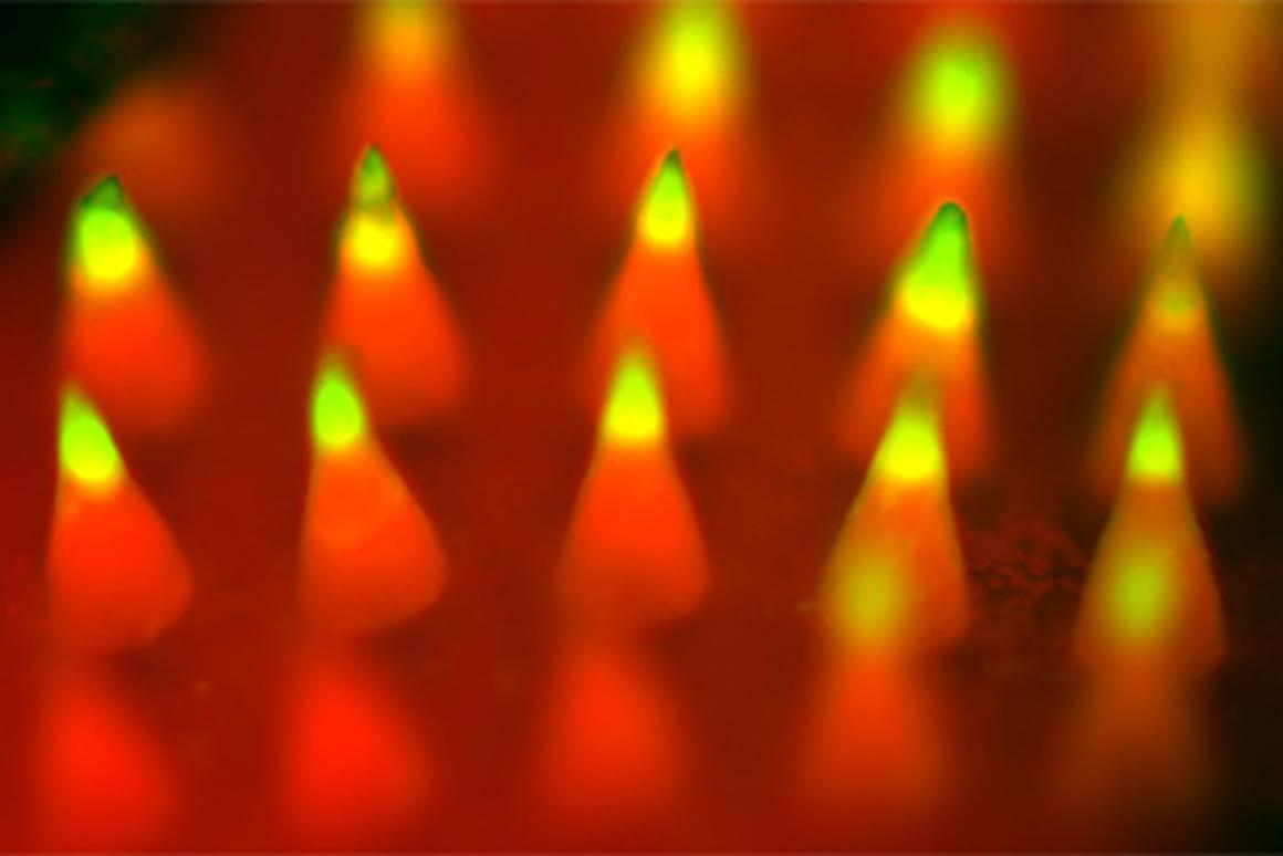 Fluorescence imaging of a microneedle patch