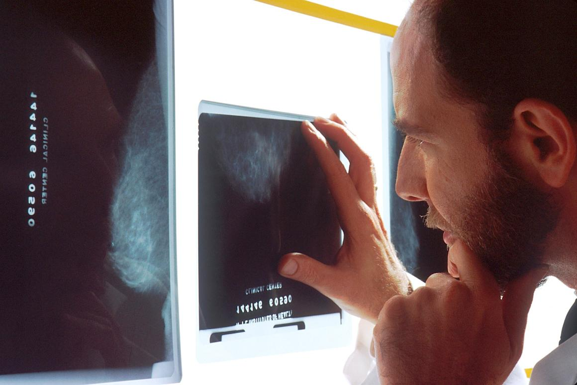 The researchers were able to pick out 40 genes closely linked to breast cancer progression, helping researchers better understand the disease
